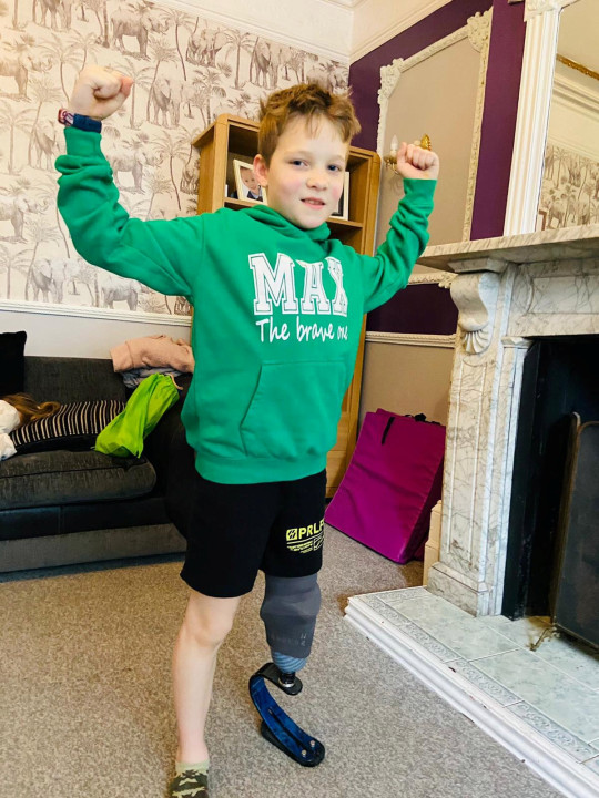Max Clark has been doing a March fitness challenge to raise funds for charity. See SWNS story SWLErun; A 10-year-old boy whose leg was completely severed off by a speeding motorbike in a horror hit and run has taken on a running challenge for charity - just 10 months after the crash. Determined Max Clark has run a mile each day to raise funds so that other children can have access to physiotherapy which has allowed him to walk and run again. The little lad had been enjoying a day out in the park with his family on May 25 when he was struck by a motorbike at ?crazy speeds?. Rider Jerome Cawkwell, 24, has been jailed for three years for causing a serious injury by dangerous driving after he struck the boy and sliced his leg off before fleeing the scene. Max was rushed from Rosmead Park in Hull, East Yorks., to Hull Royal Infirmary where doctors amputated his left leg from the knee down.