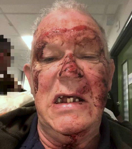 Dated: 19/06/2021 Road rage kickboxer Matthew Brady, 21, who has been jailed for 22 months at Teesside Crown Court after he launched a violent, unprovoked attack on victim Brian Sowerby when he tailgated him at high speed before punching and kicking him unconscious, leaving him with a fractured jaw. Picture shows his victim's injuries. See story North News