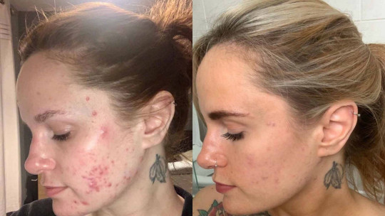 Kerrie's skin before and after using Utan. PA REAL LIFE COLLECT