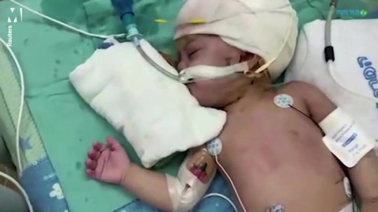 Twins conjoined at back of head see each other for first time after rare surgery Reuters